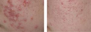 acne-antes-y-despues