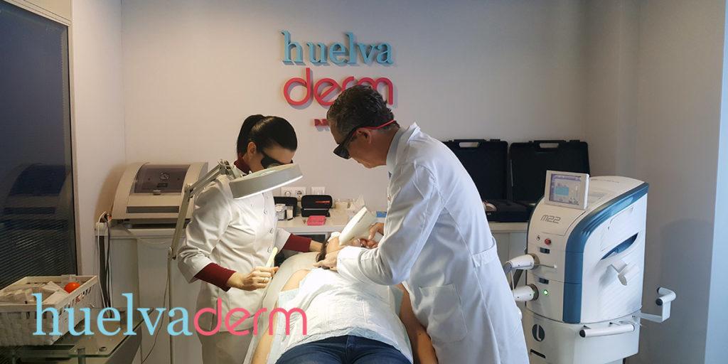 Tratamiento angioma con Láser Neodimio-Yag Huelvaderm