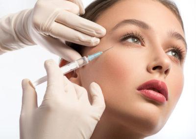 Relleno de Arrugas con ácido hialurónico