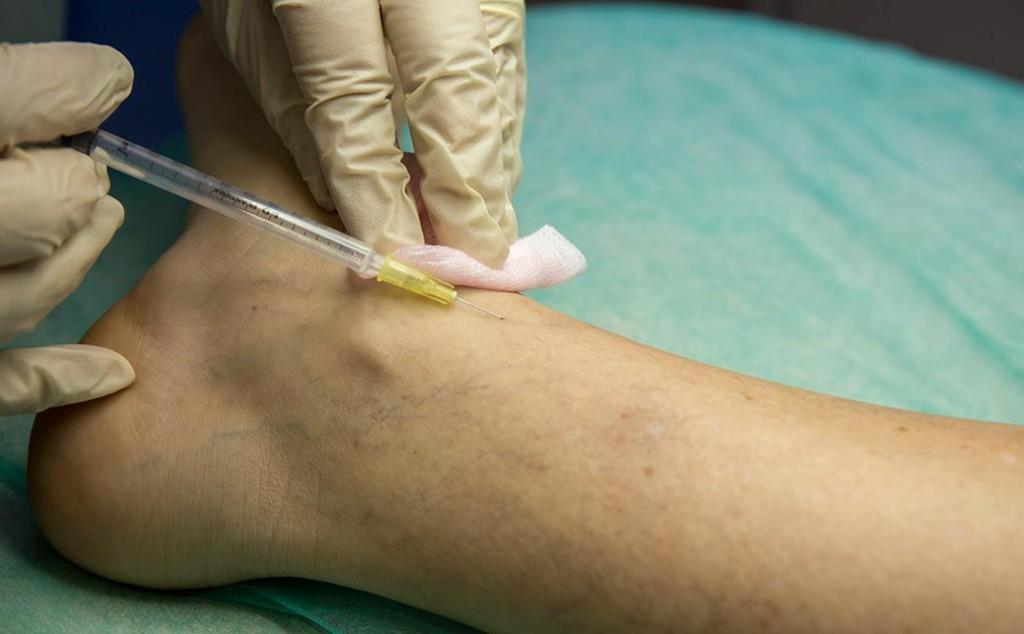 Tratamiento de esclerosis de varices, medicina estética en Huelva y Sevilla