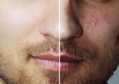 Tratamiento para eliminar marcas de acné