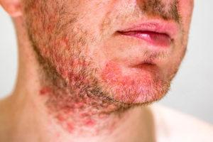 Tratamiento Dermatitis Seborreica