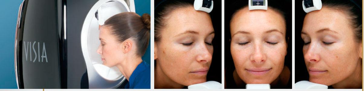equipos de diagnostico de la piel