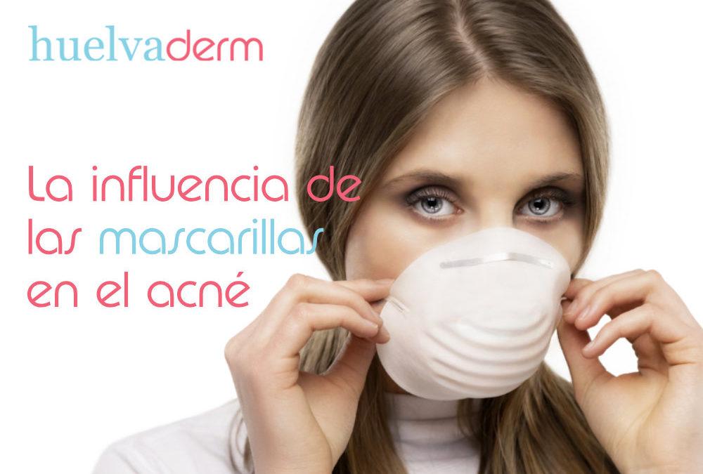 La influencia de las mascarillas en el acné